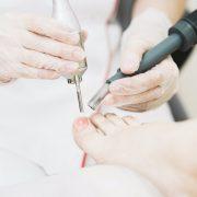 Удаление грибка ногтей лазером